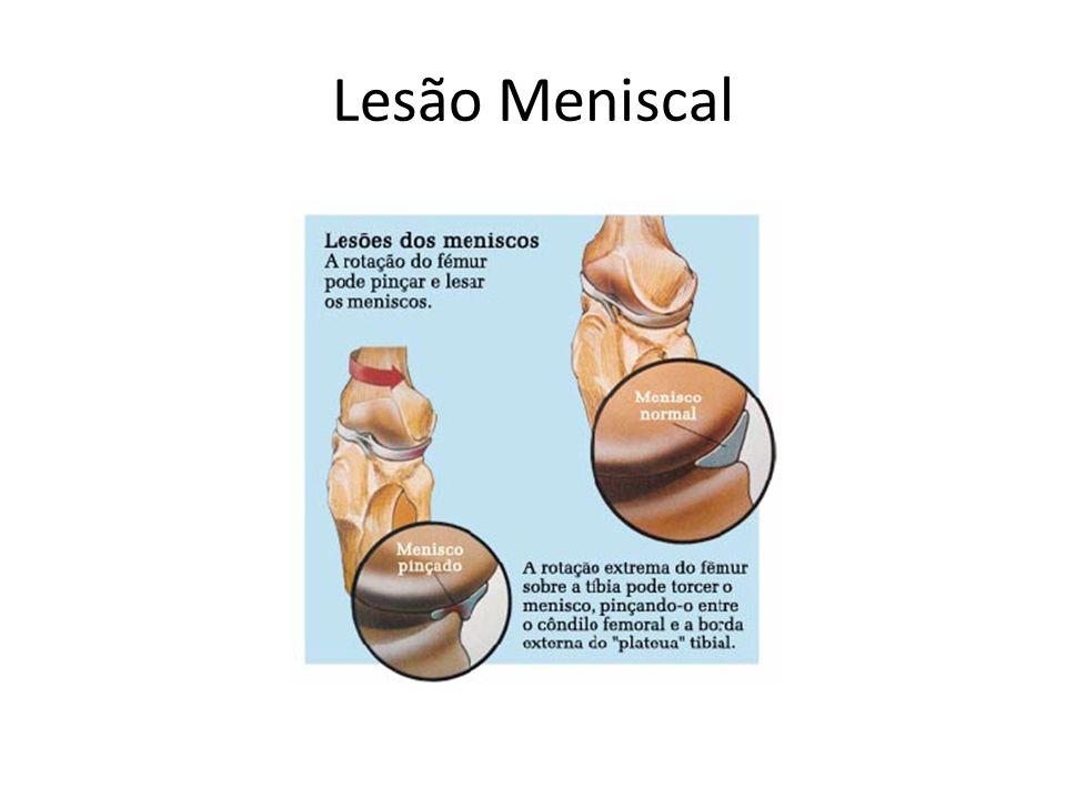 Lesão Meniscal