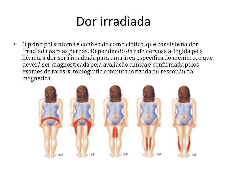 Dor irradiada O principal sintoma é conhecido como ciática, que consiste na dor irradiada para as pernas. Dependendo da raiz nervosa atingida pela hér
