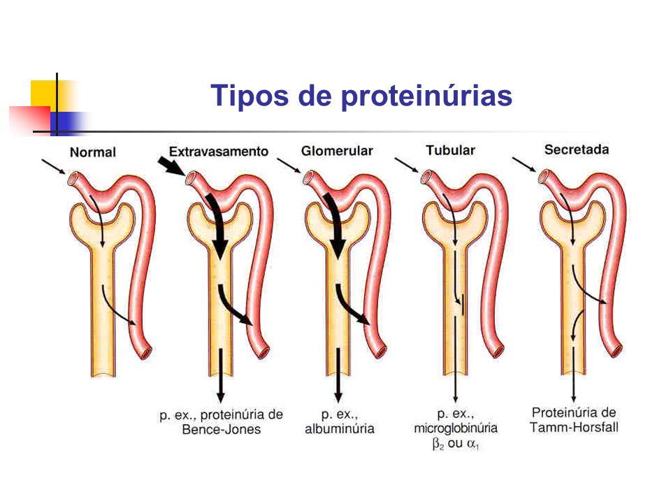 Tipos de proteinúrias