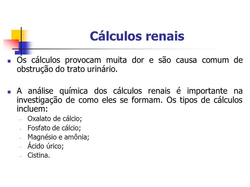 Cálculos renais Os cálculos provocam muita dor e são causa comum de obstrução do trato urinário.