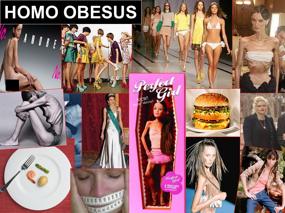 HOMO OBESUS