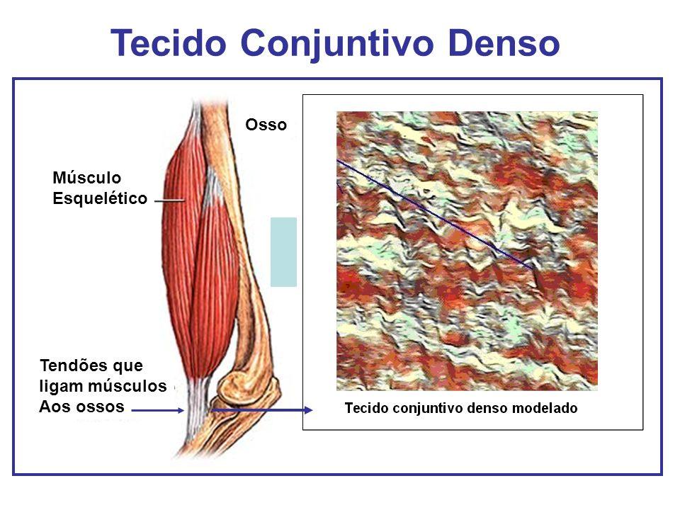 Músculo Esquelético Osso Tendões que ligam músculos Aos ossos