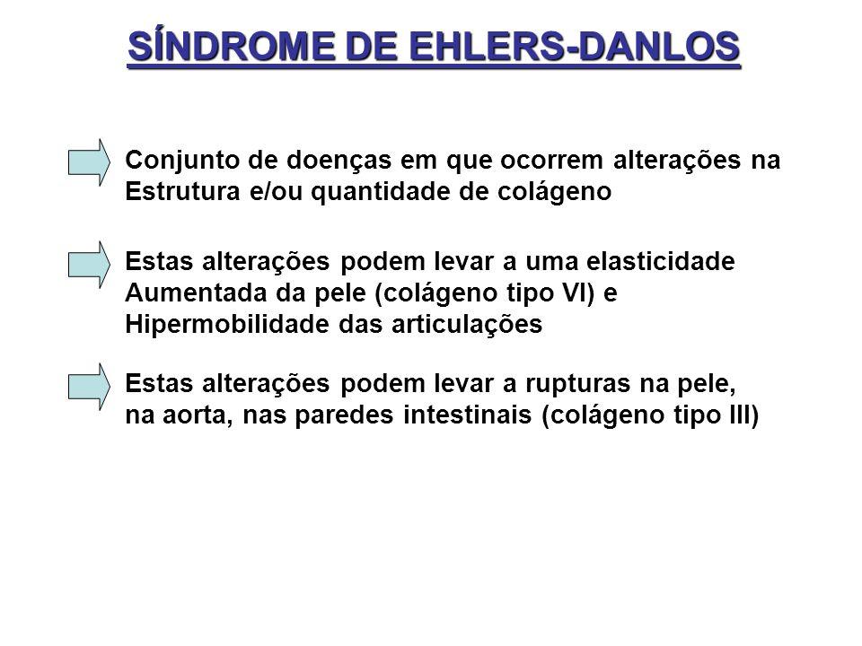 SÍNDROME DE EHLERS-DANLOS Conjunto de doenças em que ocorrem alterações na Estrutura e/ou quantidade de colágeno Estas alterações podem levar a uma el