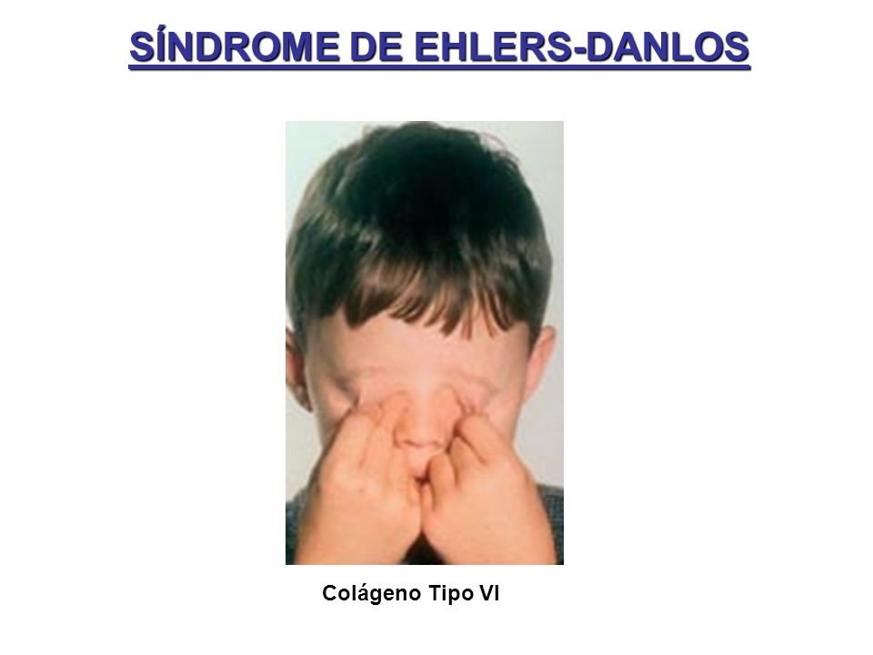SÍNDROME DE EHLERS-DANLOS Colágeno Tipo VI