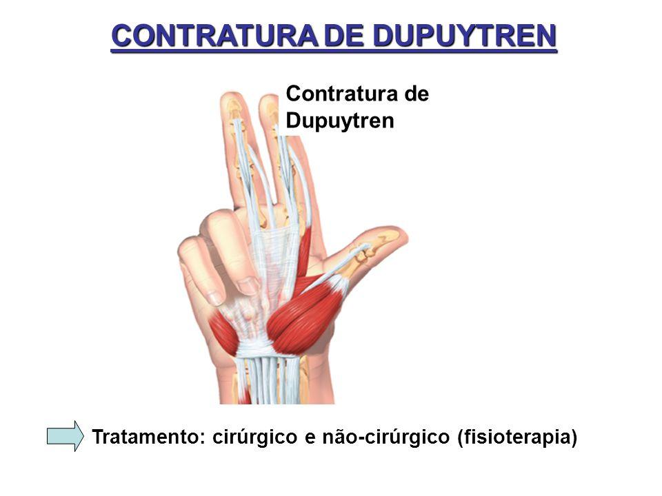 CONTRATURA DE DUPUYTREN Contratura de Dupuytren Tratamento: cirúrgico e não-cirúrgico (fisioterapia)