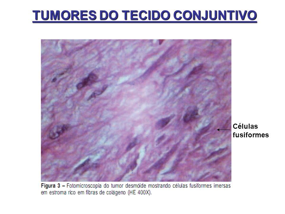 Células fusiformes