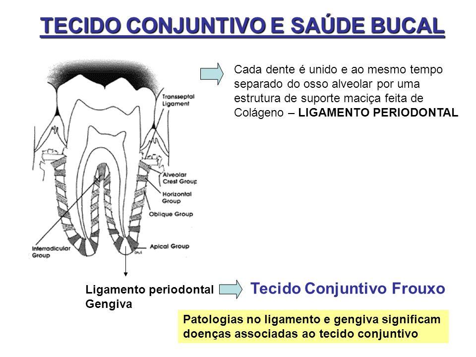 TECIDO CONJUNTIVO E SAÚDE BUCAL Cada dente é unido e ao mesmo tempo separado do osso alveolar por uma estrutura de suporte maciça feita de Colágeno –