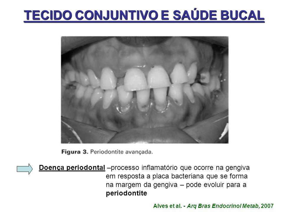 TECIDO CONJUNTIVO E SAÚDE BUCAL Doença periodontal Doença periodontal –processo inflamatório que ocorre na gengiva em resposta a placa bacteriana que