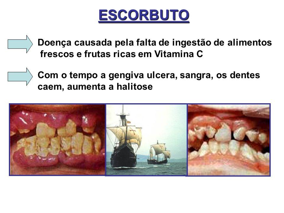 ESCORBUTO Doença causada pela falta de ingestão de alimentos frescos e frutas ricas em Vitamina C Com o tempo a gengiva ulcera, sangra, os dentes caem