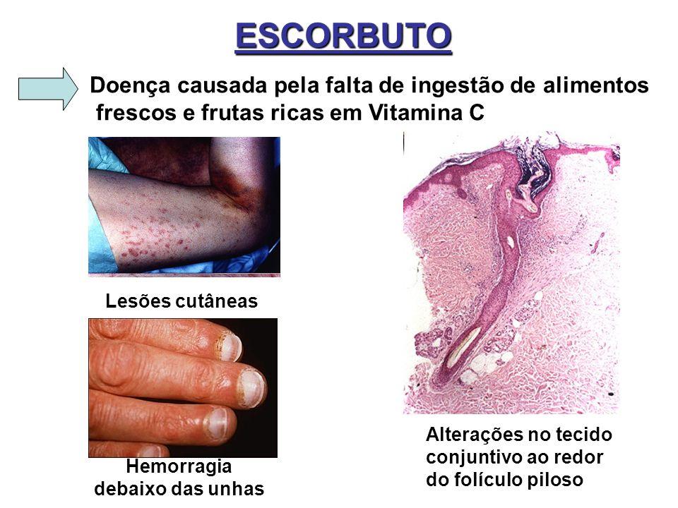 ESCORBUTO Doença causada pela falta de ingestão de alimentos frescos e frutas ricas em Vitamina C Lesões cutâneas Alterações no tecido conjuntivo ao r