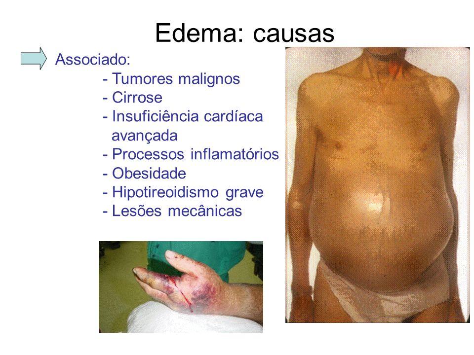 Edema: causas Associado: - Tumores malignos - Cirrose - Insuficiência cardíaca avançada - Processos inflamatórios - Obesidade - Hipotireoidismo grave