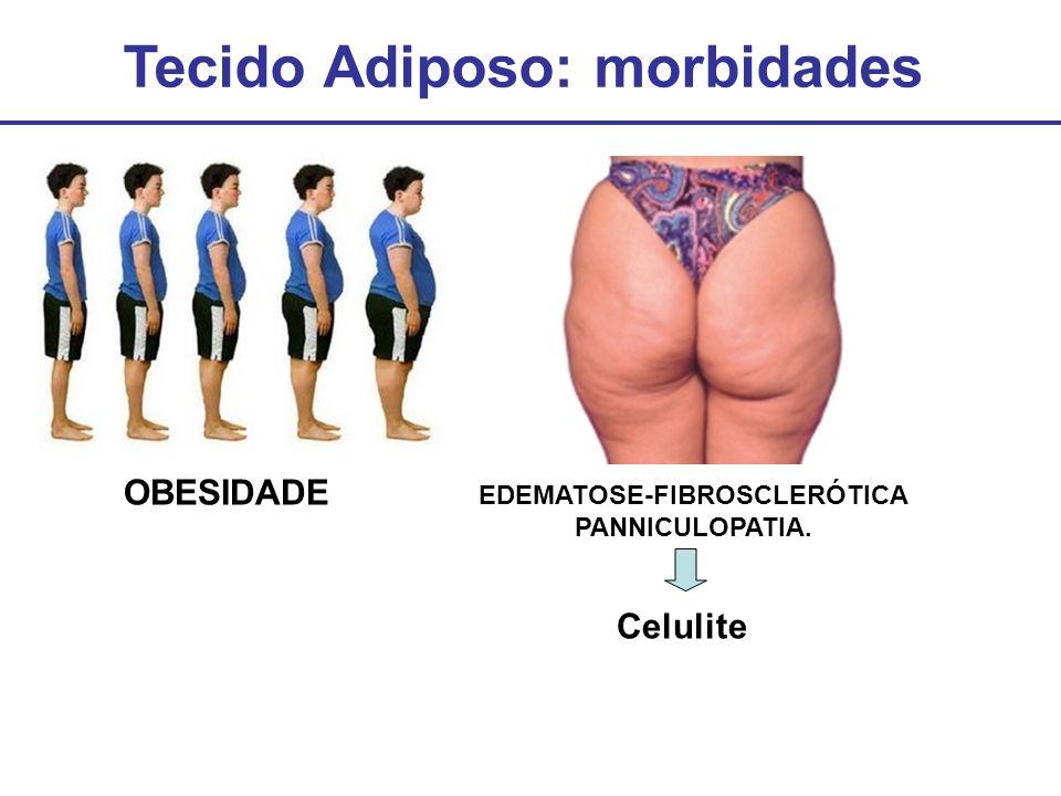 Tecido Adiposo: morbidades OBESIDADE EDEMATOSE-FIBROSCLERÓTICA PANNICULOPATIA. Celulite