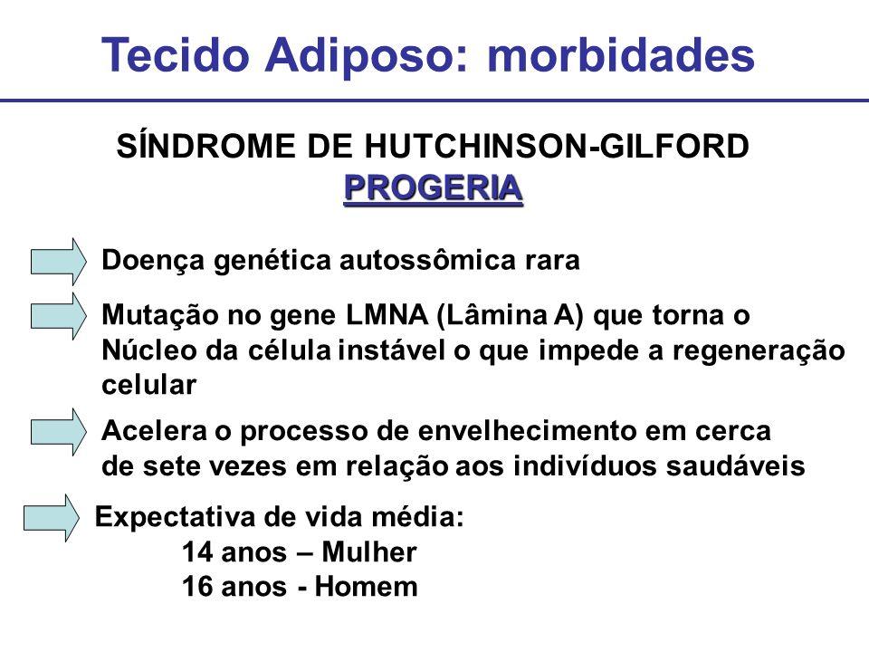 Tecido Adiposo: morbidades SÍNDROME DE HUTCHINSON-GILFORDPROGERIA Doença genética autossômica rara Acelera o processo de envelhecimento em cerca de se