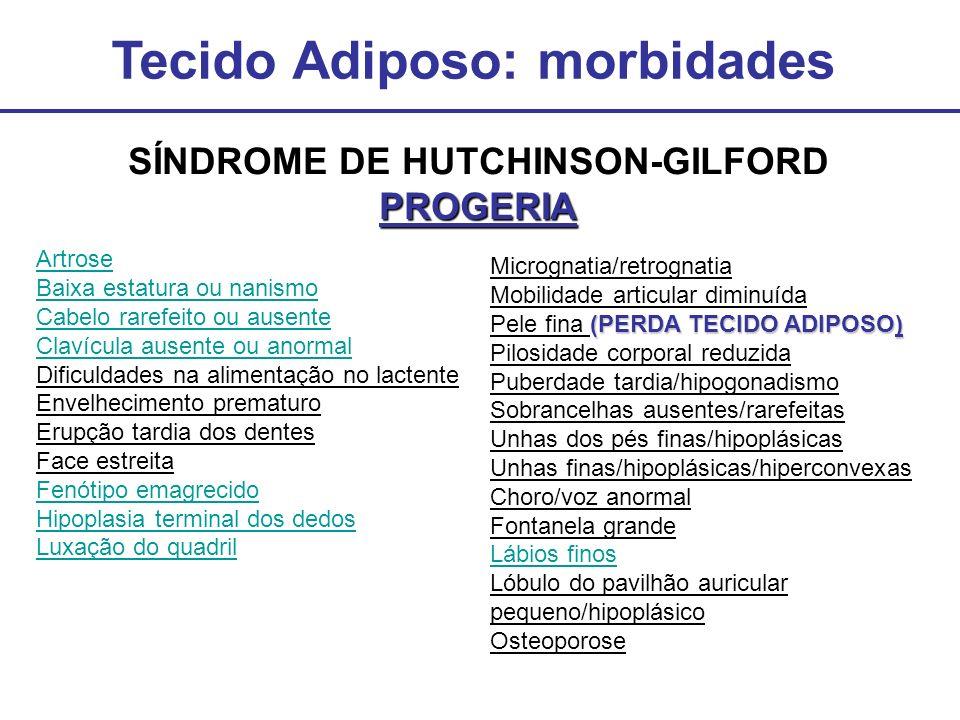 Tecido Adiposo: morbidades SÍNDROME DE HUTCHINSON-GILFORDPROGERIA Artrose Baixa estatura ou nanismo Cabelo rarefeito ou ausente Clavícula ausente ou a
