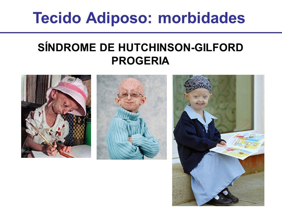 Tecido Adiposo: morbidades SÍNDROME DE HUTCHINSON-GILFORD PROGERIA