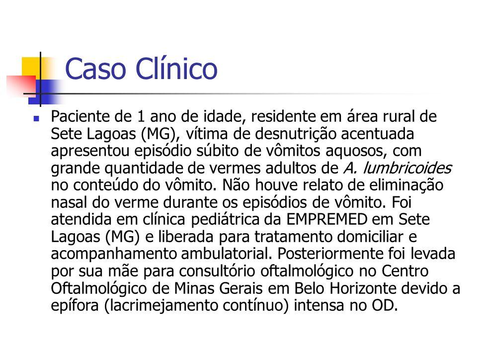 Caso Clínico Paciente de 1 ano de idade, residente em área rural de Sete Lagoas (MG), vítima de desnutrição acentuada apresentou episódio súbito de vô