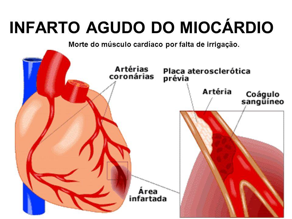 INFARTO AGUDO DO MIOCÁRDIO Morte do músculo cardíaco por falta de irrigação.