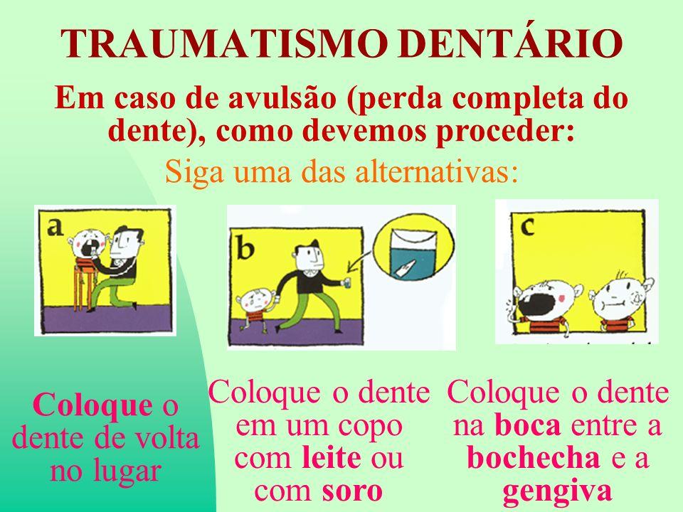 TRAUMATISMO DENTÁRIO Em caso de avulsão (perda completa do dente), como devemos proceder: Siga uma das alternativas: Coloque o dente de volta no lugar Coloque o dente em um copo com leite ou com soro Coloque o dente na boca entre a bochecha e a gengiva