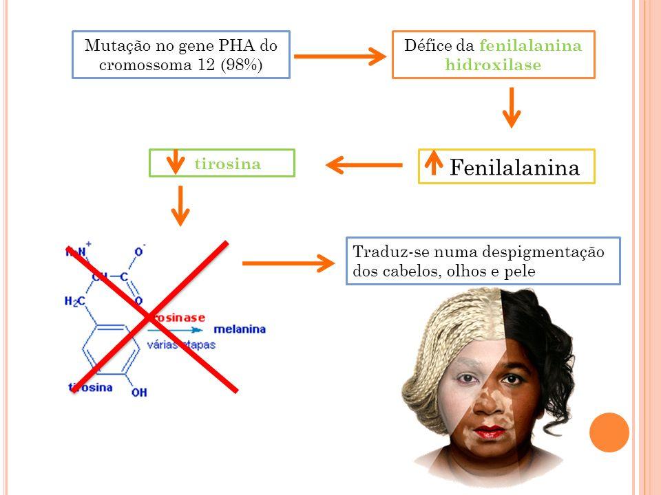 Défice da fenilalanina hidroxilase Fenilalanina Mutação no gene PHA do cromossoma 12 (98%) Traduz-se numa despigmentação dos cabelos, olhos e pele tir