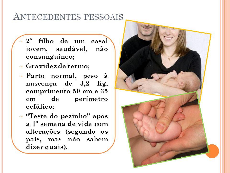 A NTECEDENTES PESSOAIS 2º filho de um casal jovem, saudável, não consanguíneo; Gravidez de termo; Parto normal, peso à nascença de 3,2 Kg, comprimento
