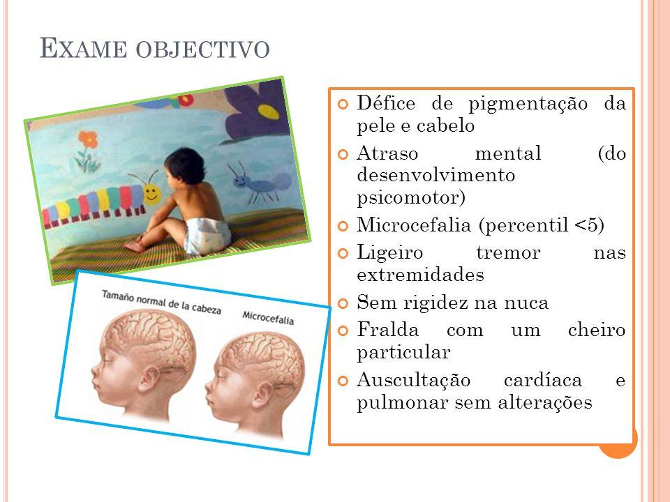 E XAME OBJECTIVO Défice de pigmentação da pele e cabelo Atraso mental (do desenvolvimento psicomotor) Microcefalia (percentil <5) Ligeiro tremor nas e