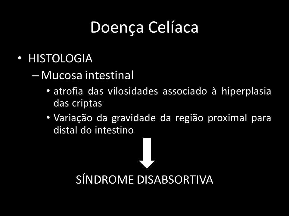 Doença Doença Celíaca HISTOLOGIA – Mucosa intestinal atrofia das vilosidades associado à hiperplasia das criptas Variação da gravidade da região proxi