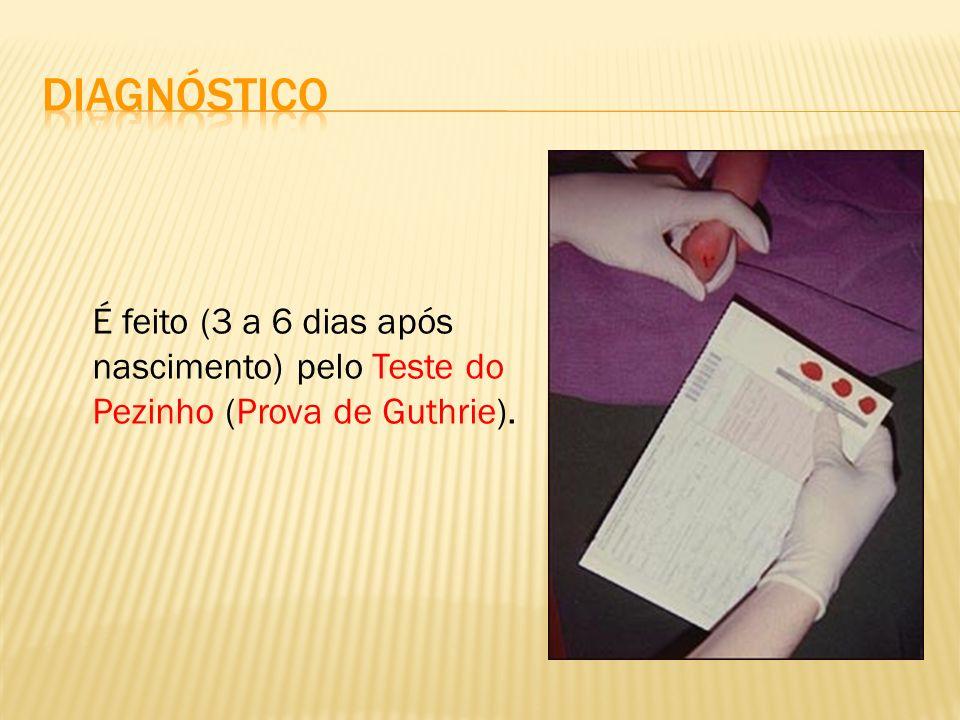 É feito (3 a 6 dias após nascimento) pelo Teste do Pezinho (Prova de Guthrie).