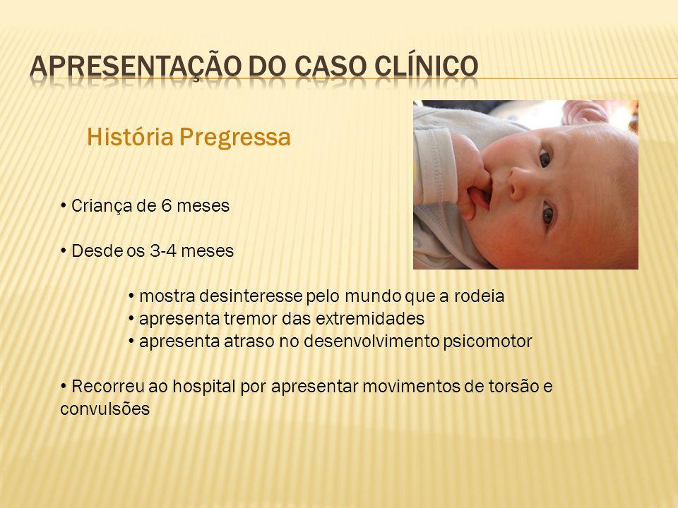 História Pregressa Criança de 6 meses Desde os 3-4 meses mostra desinteresse pelo mundo que a rodeia apresenta tremor das extremidades apresenta atras