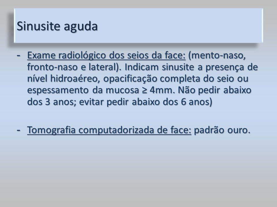 Sinusite aguda - Exame radiológico dos seios da face: (mento-naso, fronto-naso e lateral). Indicam sinusite a presença de nível hidroaéreo, opacificaç
