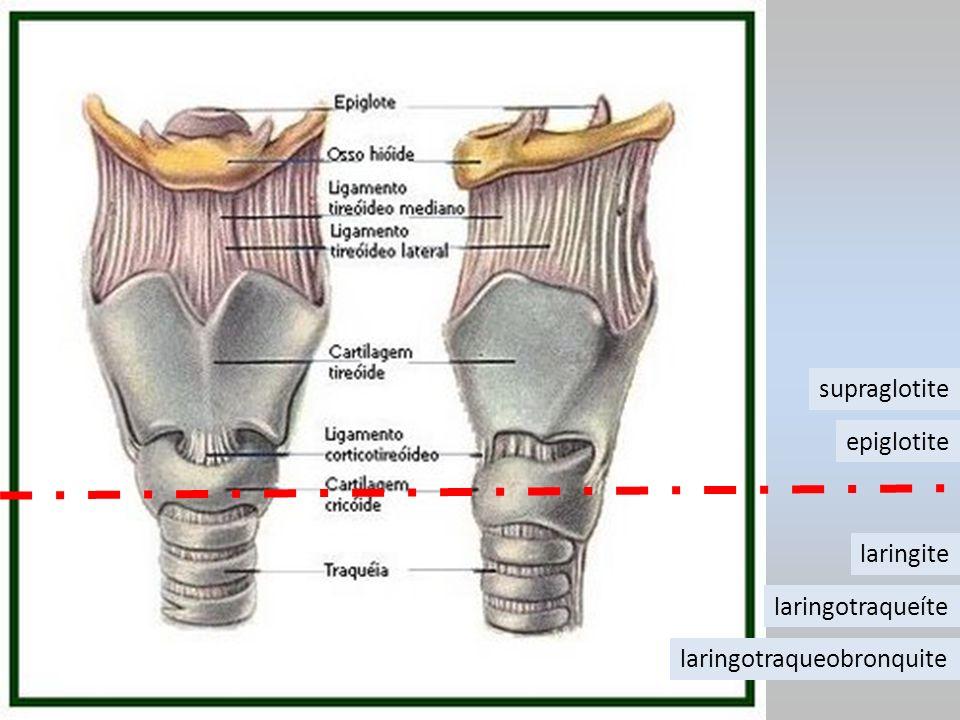 laringite laringotraqueíte laringotraqueobronquite supraglotite epiglotite