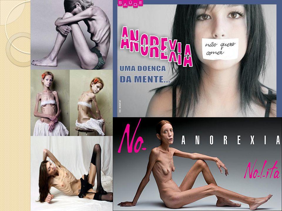 O que é a Anorexia Nervosa.
