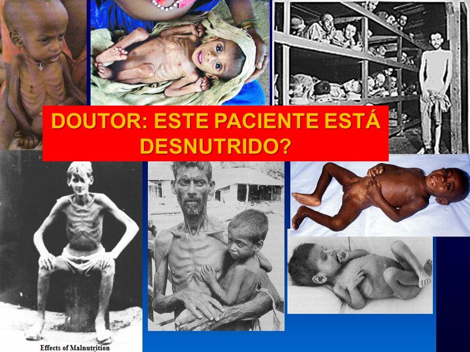 IBRANUTRIIBRANUTRI –Referência ao Estado Nutricional no Prontuário –Referência ao Peso 15,1% dos prontuários referiam o peso à admissão, apesar de 75% dos pacientes tinham balança a menos de 50m15,1% dos prontuários referiam o peso à admissão, apesar de 75% dos pacientes tinham balança a menos de 50m Desnutrição Hospitalar no Brasil