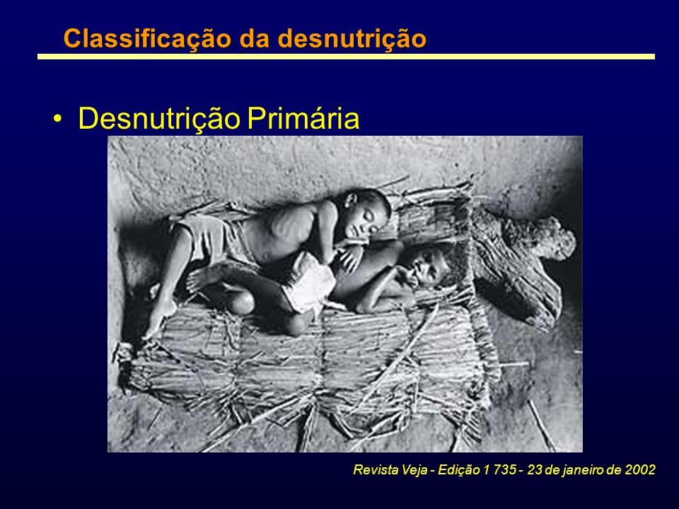 Desnutrição Primária Revista Veja - Edição 1 735 - 23 de janeiro de 2002 Classificação da desnutrição