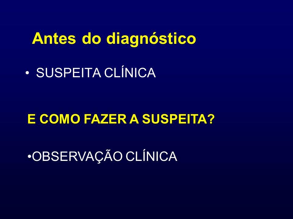 Antes do diagnóstico SUSPEITA CLÍNICA E COMO FAZER A SUSPEITA? OBSERVAÇÃO CLÍNICA