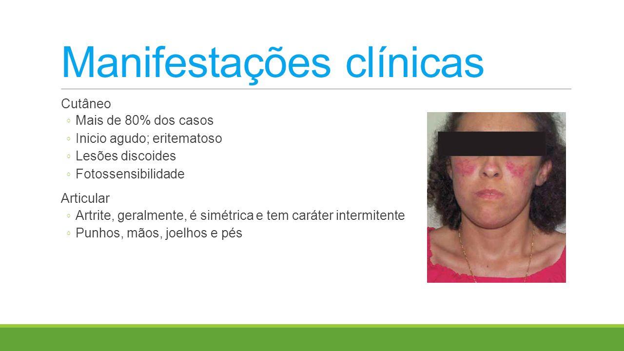 Manifestações clínicas Cutâneo Mais de 80% dos casos Inicio agudo; eritematoso Lesões discoides Fotossensibilidade Articular Artrite, geralmente, é si