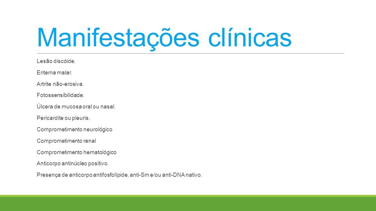 Manifestações clínicas Lesão discóide. Eritema malar. Artrite não-erosiva. Fotossensibilidade. Úlcera de mucosa oral ou nasal. Pericardite ou pleuris.