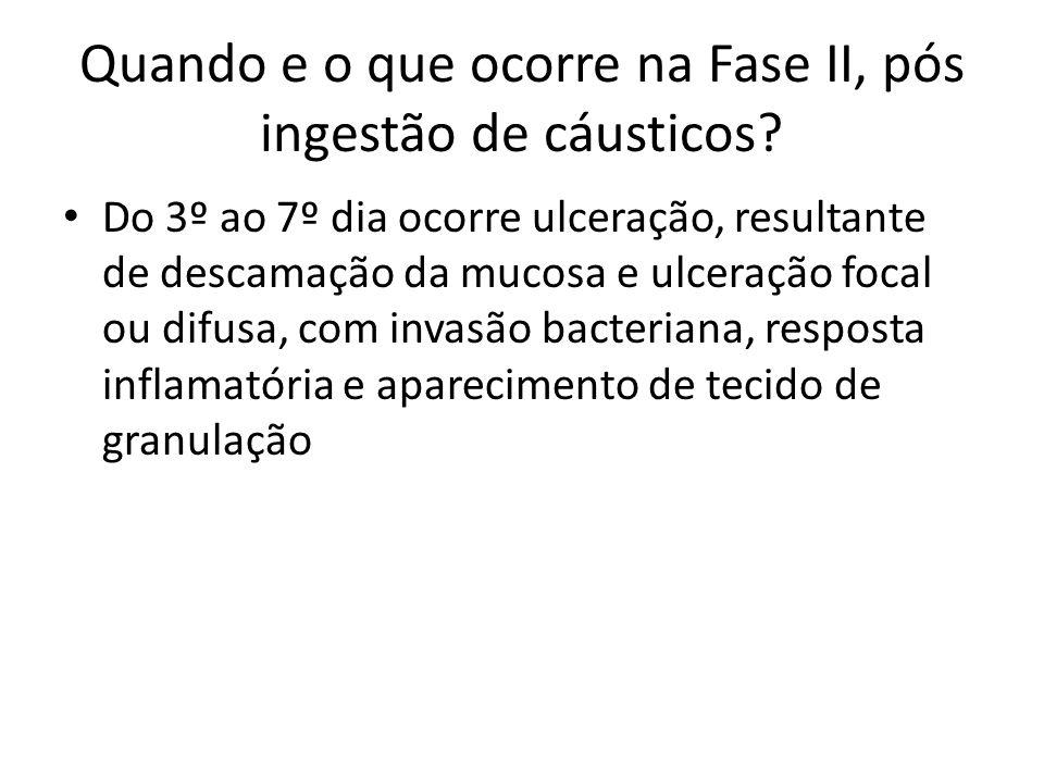 Quando e o que ocorre na Fase II, pós ingestão de cáusticos? Do 3º ao 7º dia ocorre ulceração, resultante de descamação da mucosa e ulceração focal ou