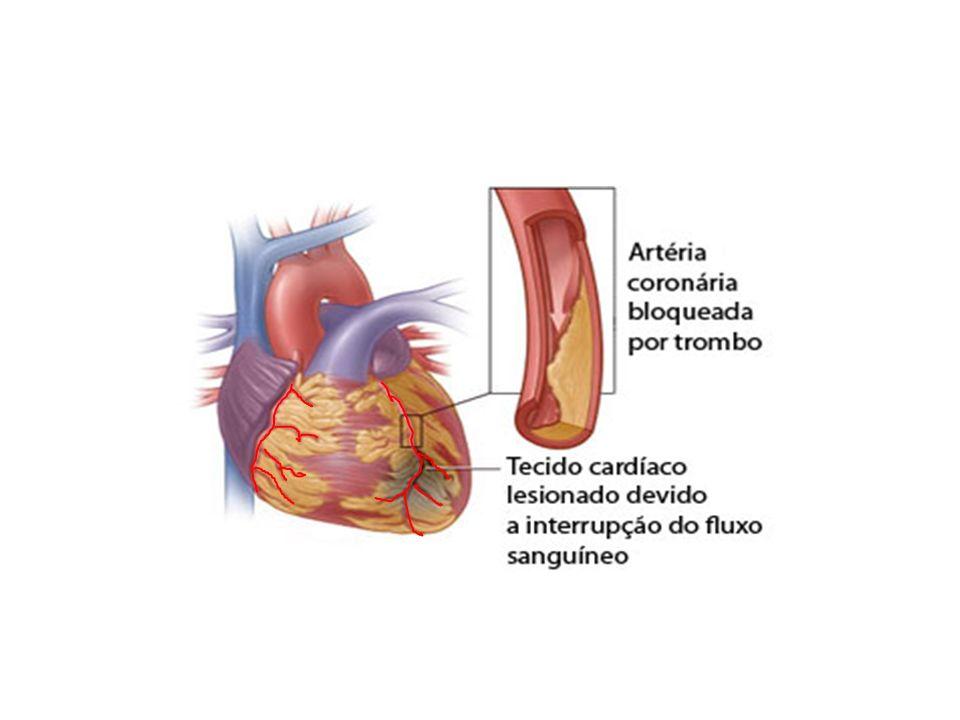 Fatores de Risco Sedentarismo Dislipidemias Estresse Histórico familiar de coronariopatias Hipertensão Tabagismo Diabete Obesidade Manuseio do paciente Prioridade no atendimento Monitorização da FC e oxigenio