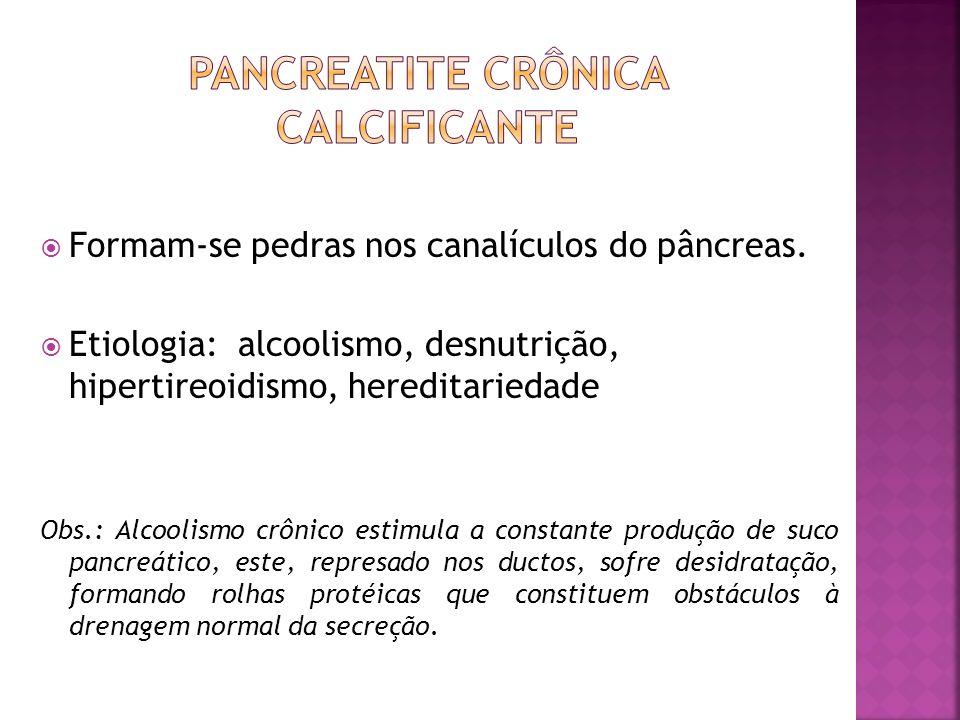 Formam-se pedras nos canalículos do pâncreas. Etiologia: alcoolismo, desnutrição, hipertireoidismo, hereditariedade Obs.: Alcoolismo crônico estimula