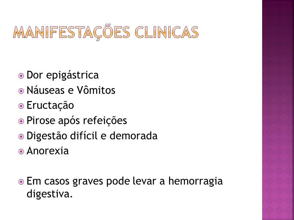 Medicamentoso – redução da acidez gástrica ate a cicatrização da ulcera.