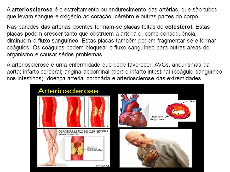 A arteriosclerose é o estreitamento ou endurecimento das artérias, que são tubos que levam sangue e oxigênio ao coração, cérebro e outras partes do co
