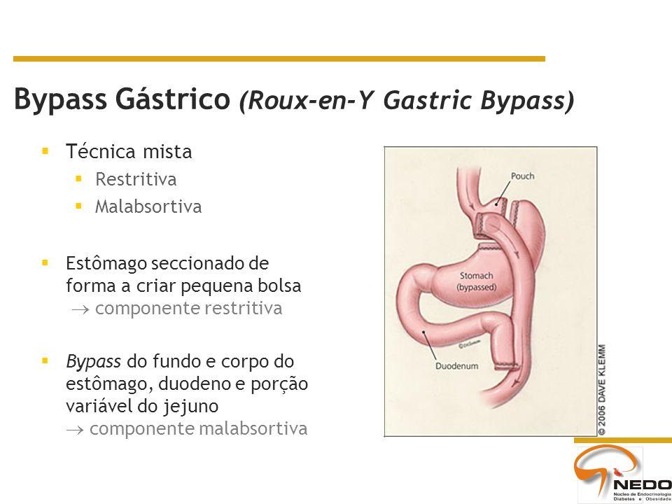 Bypass Gástrico (Roux-en-Y Gastric Bypass) Técnica mista Restritiva Malabsortiva Estômago seccionado de forma a criar pequena bolsa componente restritiva Bypass do fundo e corpo do estômago, duodeno e porção variável do jejuno componente malabsortiva