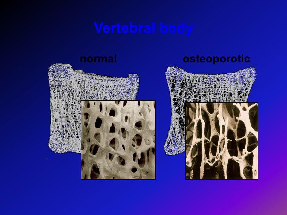 Vertebral body normalosteoporotic