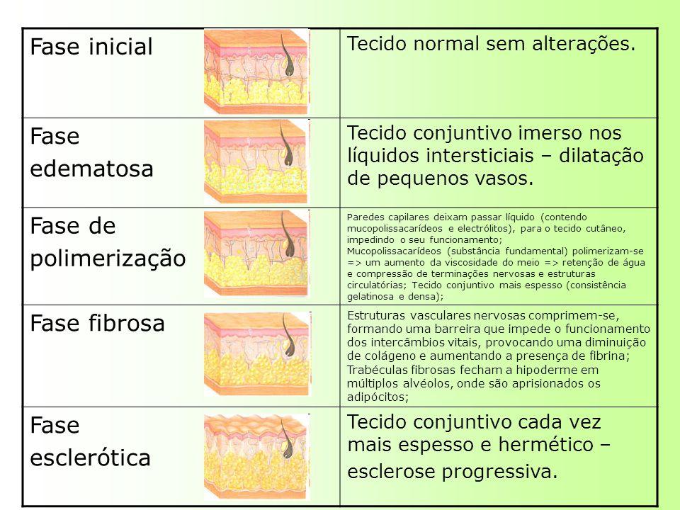 Fase inicial Tecido normal sem alterações. Fase edematosa Tecido conjuntivo imerso nos líquidos intersticiais – dilatação de pequenos vasos. Fase de p