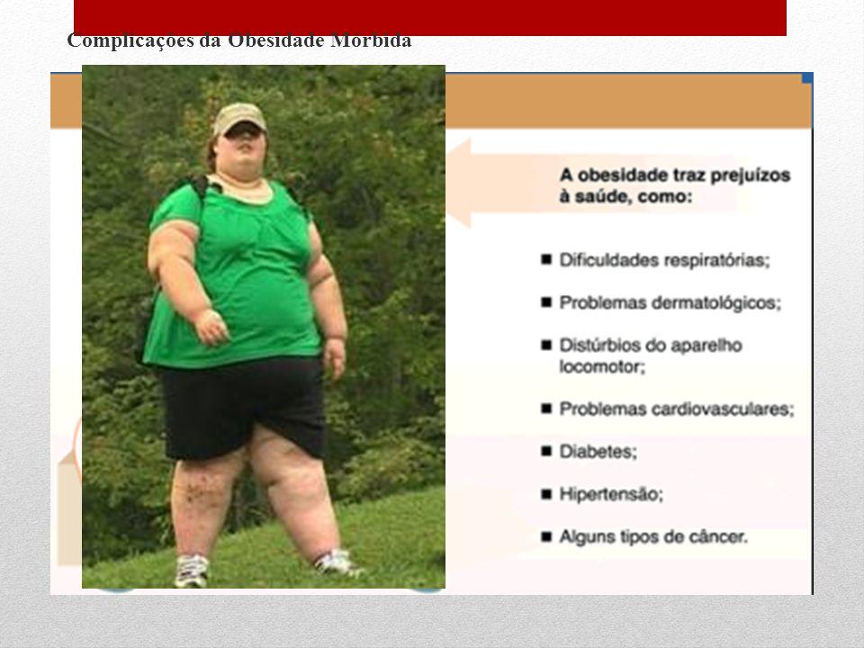 Complicações da Obesidade Mórbida