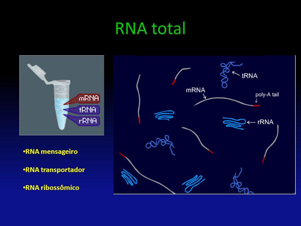 RNA total RNA mensageiro RNA transportador RNA ribossômico