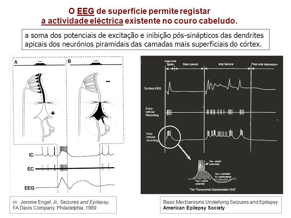 EEG O EEG de superfície permite registar a actividade eléctrica existente no couro cabeludo.