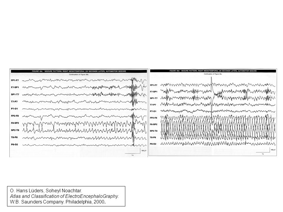 O.Hans Lüders, Soheyl Noachtar. Atlas and Classification of ElectroEncephaloGraphy.