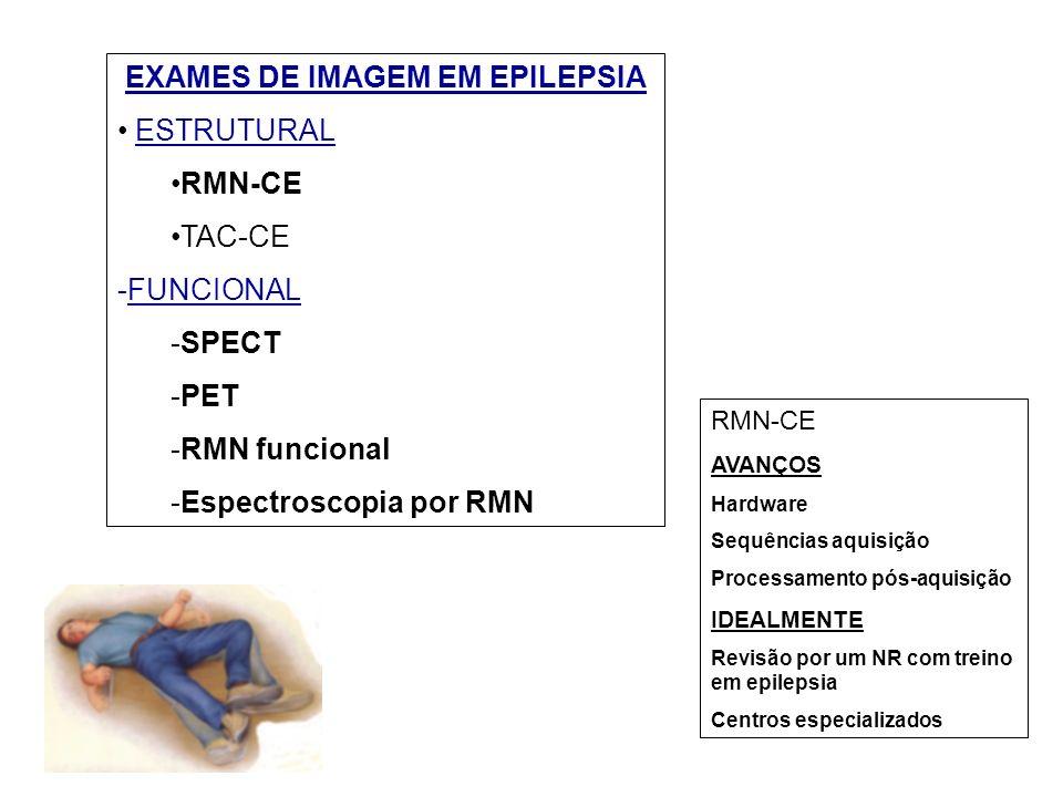 EXAMES DE IMAGEM EM EPILEPSIA ESTRUTURAL RMN-CE TAC-CE -FUNCIONAL -SPECT -PET -RMN funcional -Espectroscopia por RMN RMN-CE AVANÇOS Hardware Sequências aquisição Processamento pós-aquisição IDEALMENTE Revisão por um NR com treino em epilepsia Centros especializados