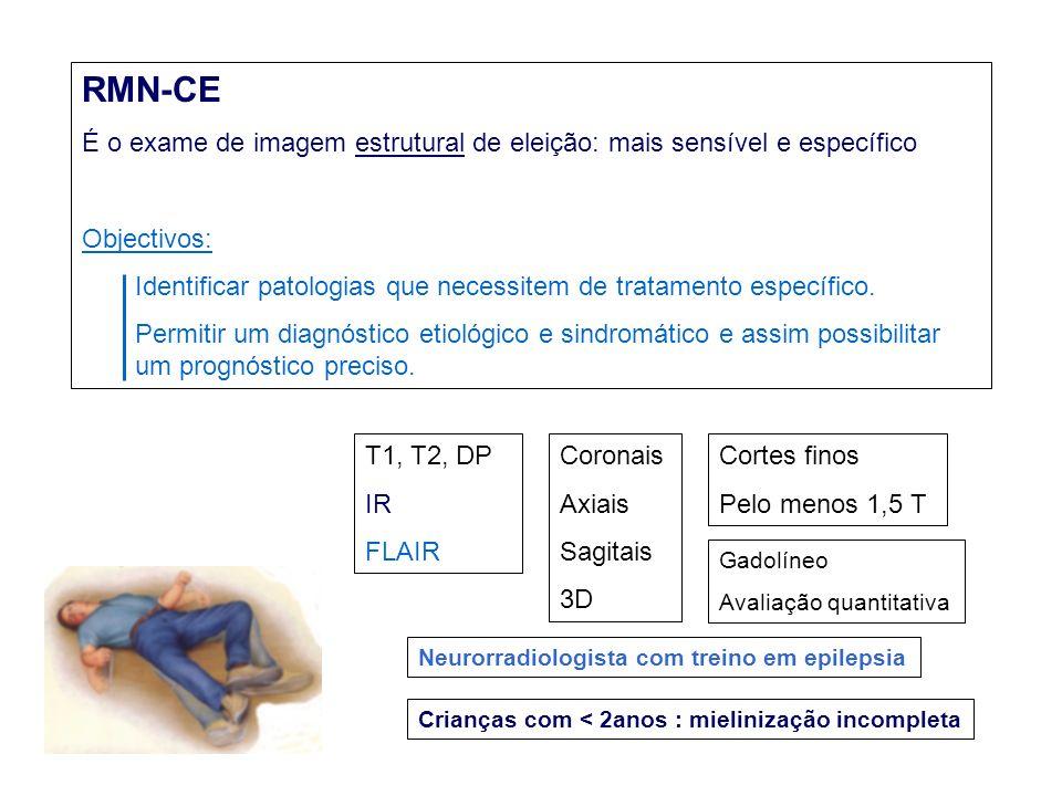 RMN-CE É o exame de imagem estrutural de eleição: mais sensível e específico Objectivos: Identificar patologias que necessitem de tratamento específico.